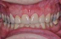 DentalCrowns after