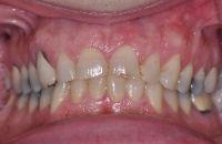 Dental Crowns before