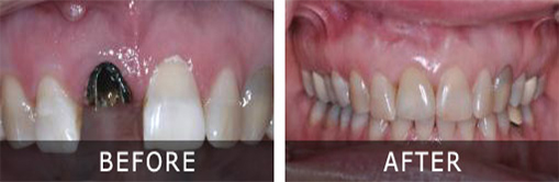 Dental Implants before after 1