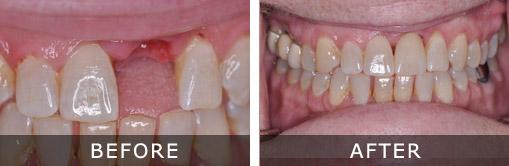 Dental Implants Kennewick and Tri-Cities WA