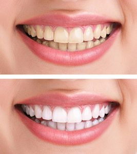 Teeth Whitening from Kennewick Dental, WA
