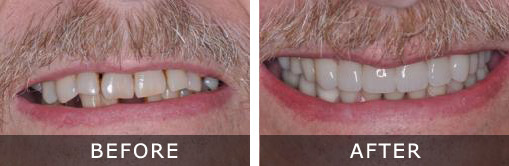 Dental Implants 3