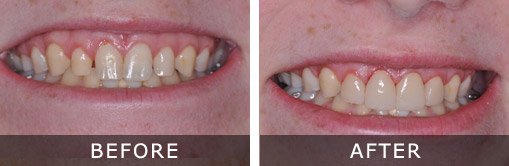 Dental Implants 4