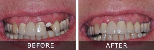 Dental Implants 6