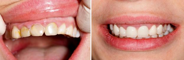 Veneers and Bonding Kennewick Dental