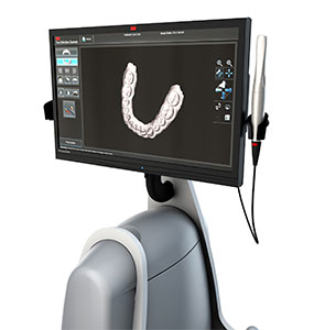 cone-beam-dental-x-ray-ct-scanners-panoramic-cephalometric-digital-radiography-systems-1-285x300