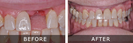 Dental Implants Kennewick and Tri-Cities WA