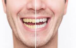5 foods and drinks that can stain your teeth